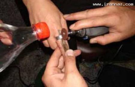 دردسر عجیب یک انگشتر برای این زن تهرانی +عکس ، www.irannaz.com